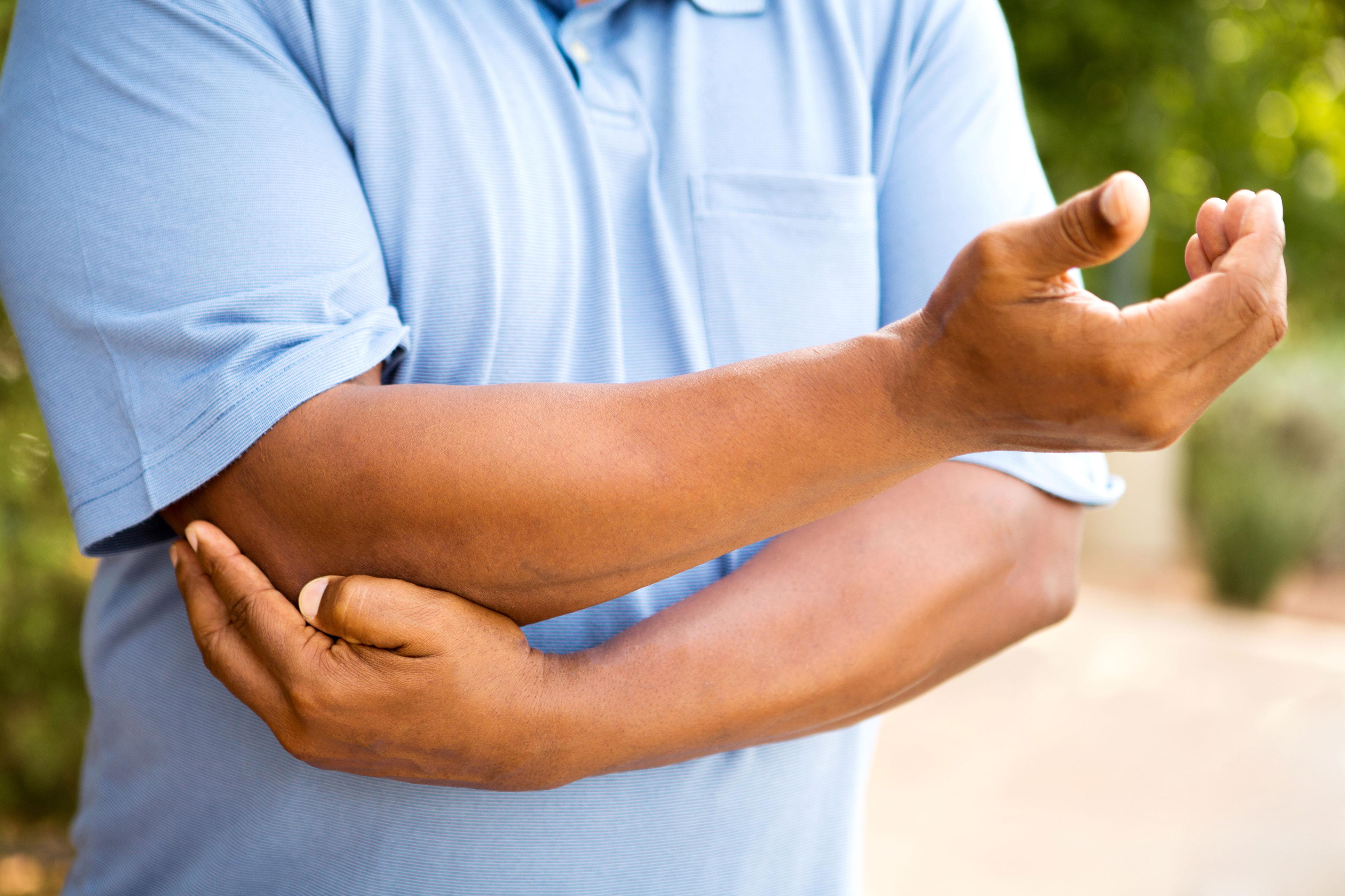 Caucasian man holding his elbow in pain